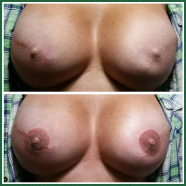 Breast cancer, Breast re-pimentation, areola